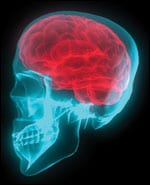Brain Trauma and Sleep Problems