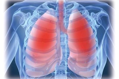 Sleep-disordered Breathing Secondary to Sarcoidosis