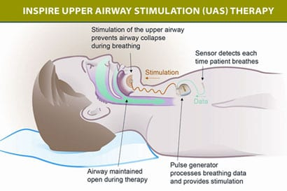 Implanted Inspire Upper Airway Stimulator Significantly Improves OSA