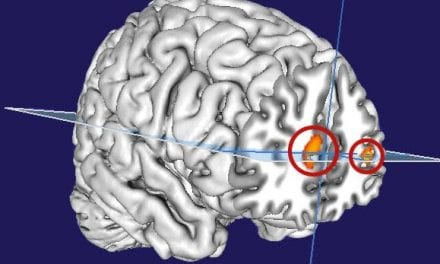 Brain Researchers Discover Similarities Between Dreaming, Wakefulness