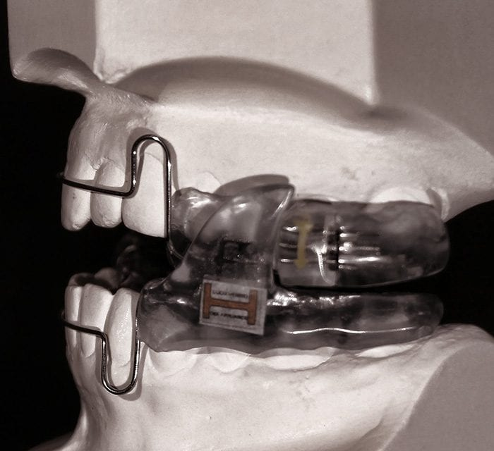 FDA Clears Luco OSA Oral Appliance for Sleep Bruxism, Aid in Treatment of Associated Migraine Headaches