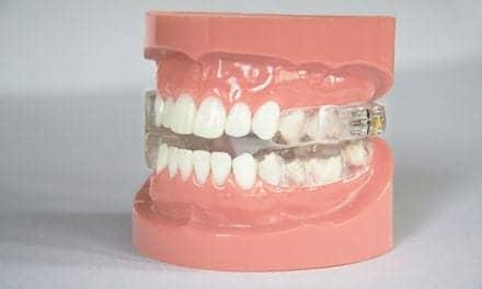 Oravan Dental Device for Obstructive Sleep Apnea