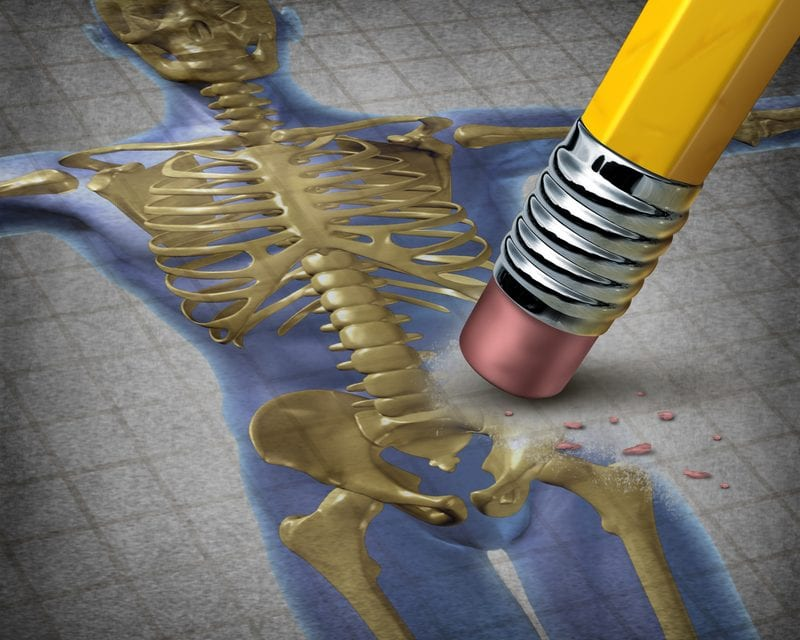 Obstructive Sleep Apnea Raises Osteoporosis Risk, May Impact Bone Health