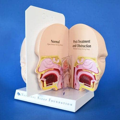 NSF 3D Pediatric Model Aids in Sleep Education