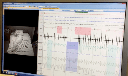 Keeler Stops Breathing 168 Times During Sleep Study [VIDEO]