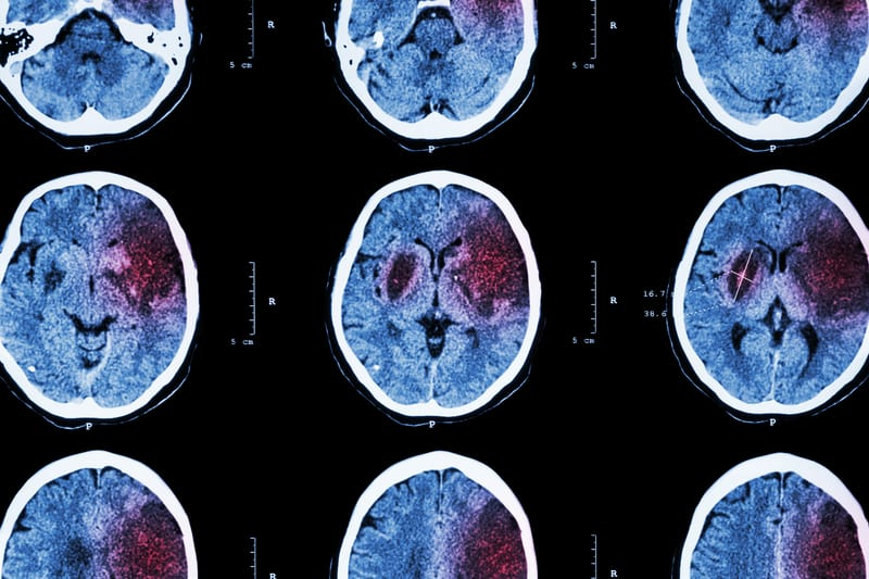 Daylight Saving Time May be Tied to Temporary Increase in Ischemic Stroke Risk