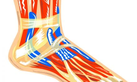 For RLS Patients, A Foot Wrap Targeted Pressure Device Shows Promise in Moderate to Severe Cases