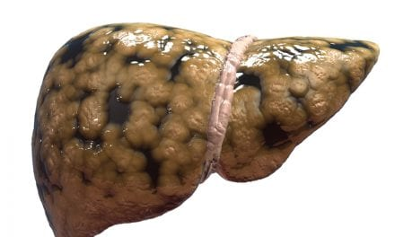 Sleep Apnea Worsens Non-alcoholic Fatty Liver Disease in Obese Adolescents