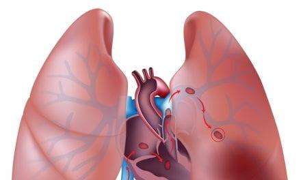 Sleep Apnea Can Contribute to Recurring Pulmonary Embolism
