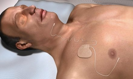 Upper Airway Stimulating Device Can Help Apnea Patients
