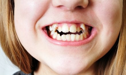 Can Obstructive Sleep Apnea Be Prevented? An Integrative Orthodontist Says, In Some Cases, Yes