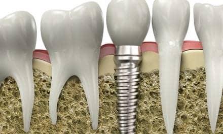 Obstructive Sleep Apnea Causes Complications in Dental Implants