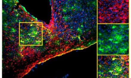 Star-shaped Astrocytes Prove to Be Surprisingly Important Players in Body's Clock