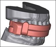 Army Piloting Dental Sleep Medicine Program Using ProSomnus Oral Appliances; Employment Opportunities for Civilians Available