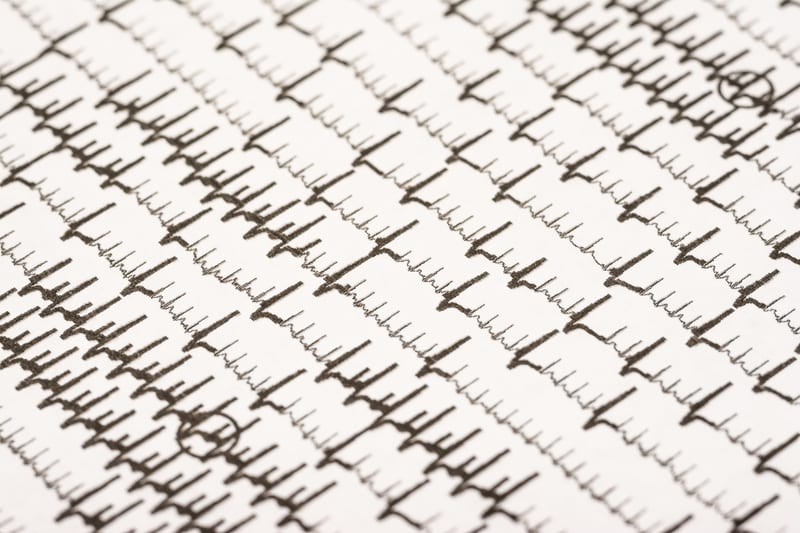 Study Emphasizes Importance of Checking AFib Patients for Sleep Apnea