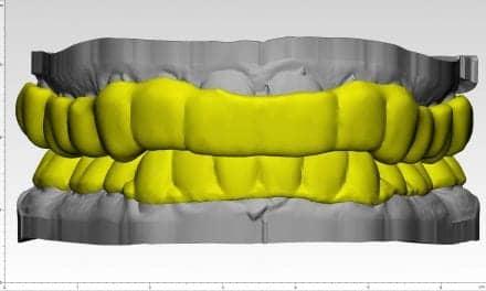 ProSomnus Sleep Technologies ACG Airway Centric Dental Splint System