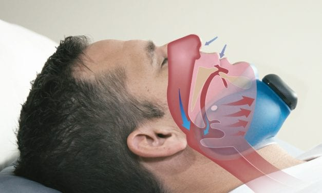 Evaluating a Potential New Treatment for Obstructive Sleep Apnea: Continuous Negative External Pressure