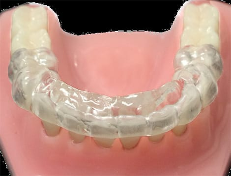 ProSomnus Morning Occlusal Guide [MOG] to Realign Mandible in Sleep Apnea Patients Using Oral Appliances