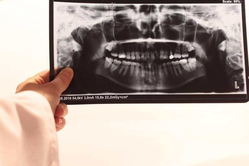 """""""Silent Sleep Apnea"""" Prevalent in Patients with Jaw Deformity"""