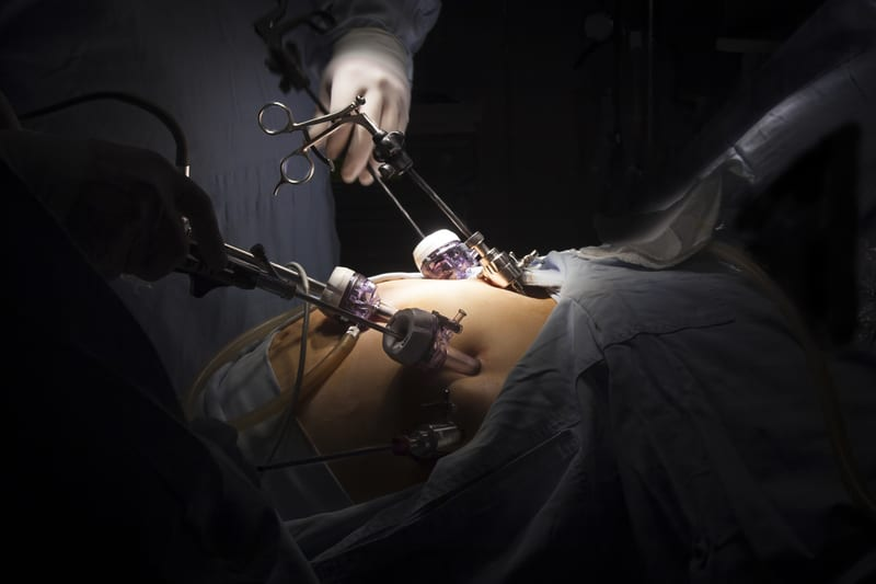 Few Young Patients with Severe Obesity Undergo Weight Loss Surgery