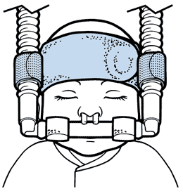 Respiralogics Baby Head Band and Circuit Bumpers to Secure Nasal Interfaces