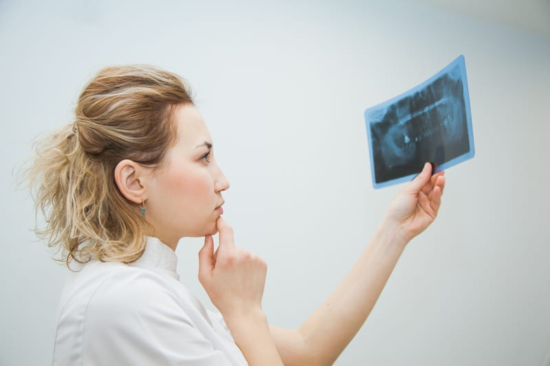 Maxillomandibular Advancement Surgery Successful Treatment Option for OSA
