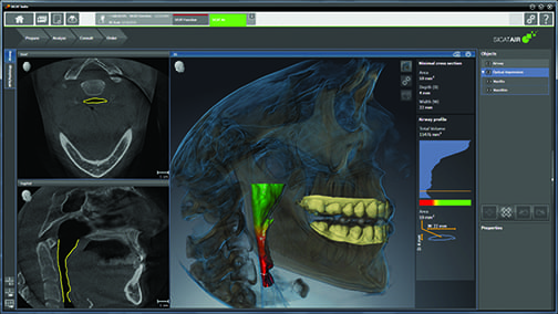 Does Cone Beam Computed Tomography Make Sense in Your Dental Practice?