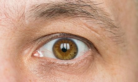 Floppy Eyelids May Be Sign of Sleep Apnea