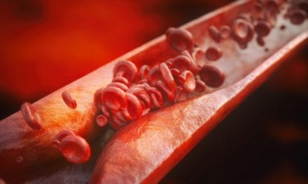 Short and Fragmented Sleep Linked to Hardened Arteries