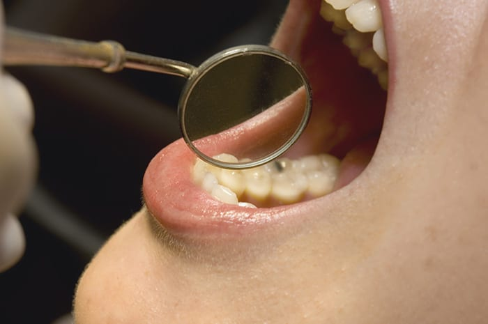 How to Expand Your Dental Practice with Dental Sleep Treatments