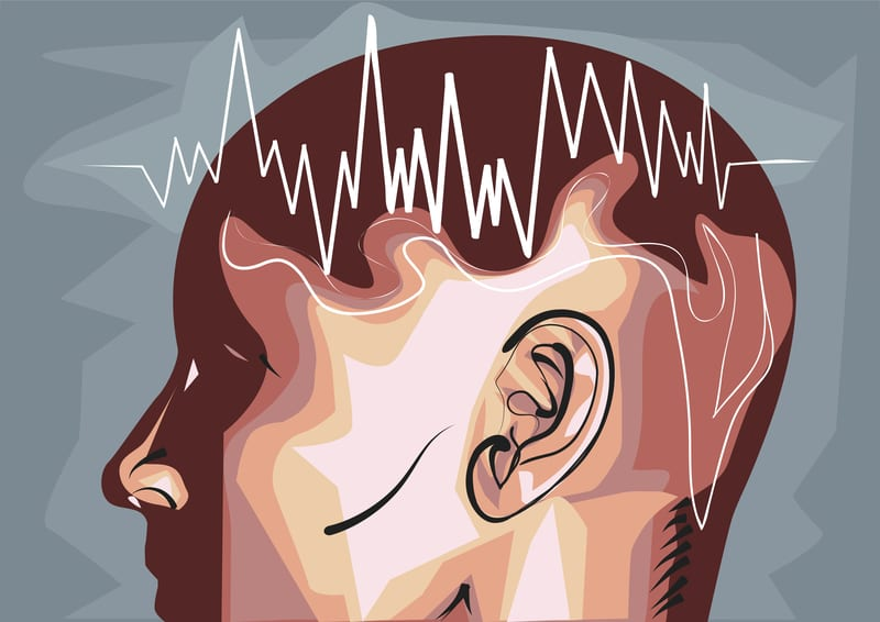 New EEG Insights Offer Window into Hypersomnia Differential Diagnosis