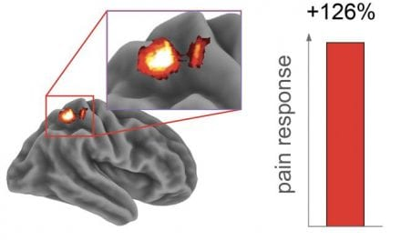Sleep Loss Heightens Pain Sensitivity