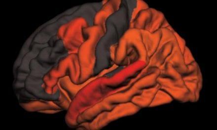 Toxic Brain Protein Tau Elevated in Older People Who Sleep Poorly