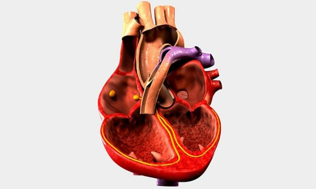 Analyzing ASV in People with Heart Failure and Sleep-disordered Breathing