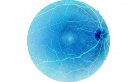 Diabetics with Severe Sleep Apnea at Higher Risk of Blinding Eye Disease