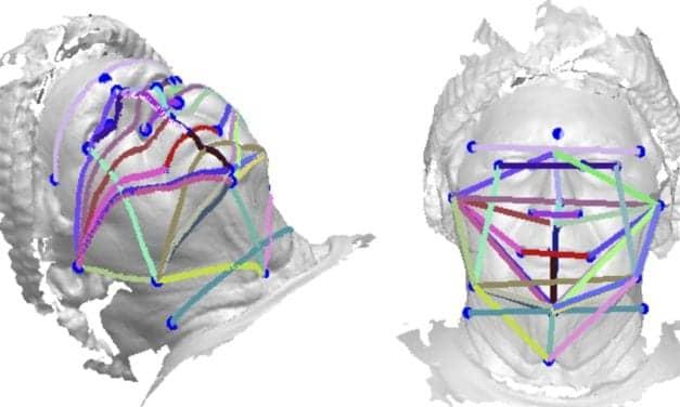 3D Face Photos Could Be a Sleep Apnea Screener