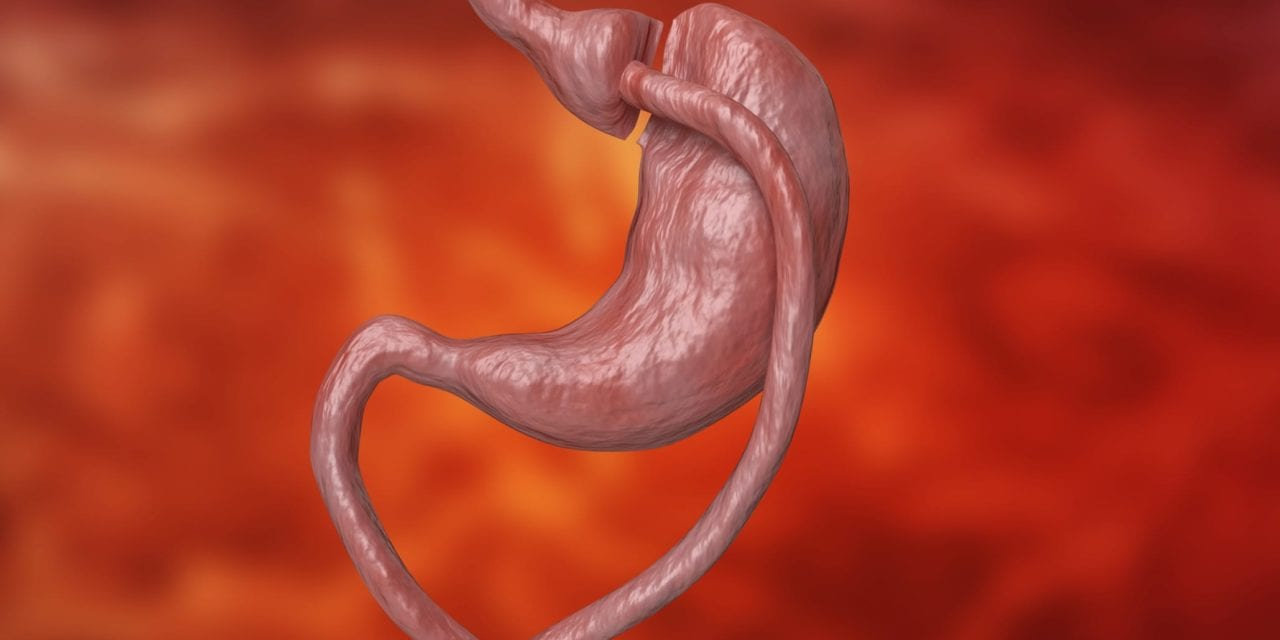 Society: Resume Bariatric and Metabolic Surgery Before COVID-19 Pandemic Is Over