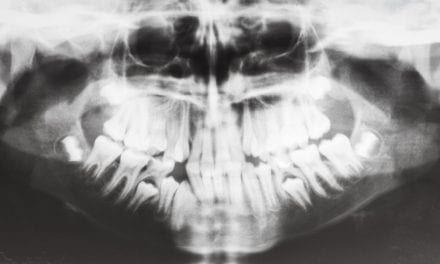 Stanford Researchers Address Shrinking Jaws & Their Linked Sleep Issues