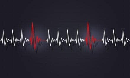 Atrial Fibrillation Isn't the Only Type of Arrhythmia Linked to Sleep Apnea