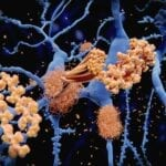 Severe Sleep Apnea Linked to Increased Beta-Amyloid in Brain