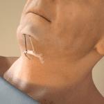 Hyoid Suspension + UPP Is Efficacious For Multilevel Obstructive Sleep Apnea Patients